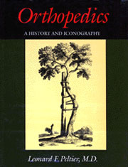 Orthopedics: A History and Iconography by Leonard F. Peltier, M.D.